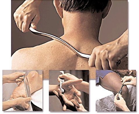 Graston Technique® incorporates a patented form of instrument-assisted soft tissue mobilization that enables clinicians to effectively detect and treat scar tissue and restrictions that affect normal function.